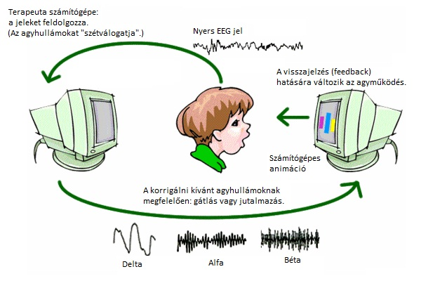 neurofeedback-overview